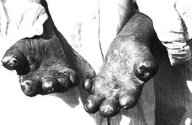 A leper's hands