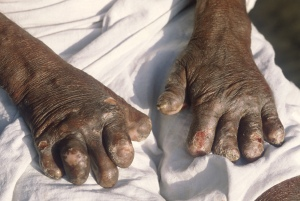 Withered hands (leprosy)